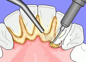 scaling-dental-tartar-and-plaque-300x219.jpg